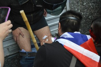 CHAOS: Protesters treating wounds caused by military police.